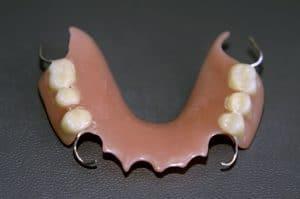 Acrylic-Dentures