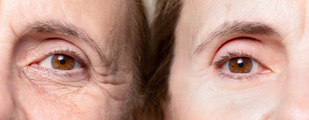botox-crows-feet-eyes-anti-wrinkle