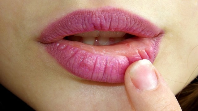 lip-cold-sore-woman