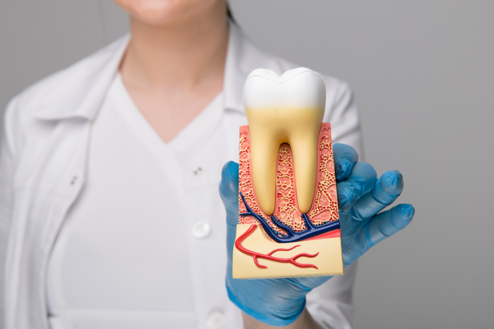 Dentists model of tooth